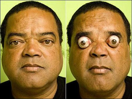 oculares